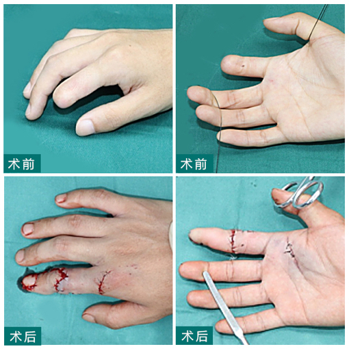 手指再造大概多少钱?黄威全形全形手指再造费用