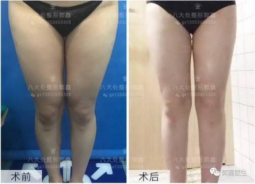 八大处整形郭鑫:大腿环吸术后瘦腿半个月案例分享