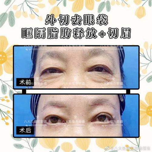 八大处整形郭鑫教授:切眉术努力让你可以更完美