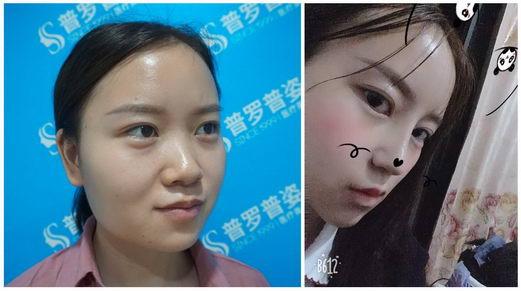 南京普罗普姿肋骨鼻整形专业吗?做鼻子如换脸?