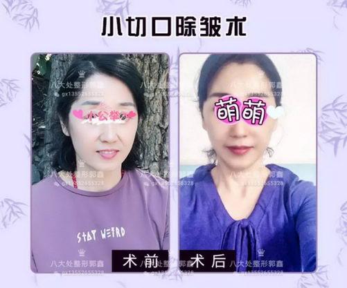 八大处整形郭鑫教授:选择北京小切口除皱让你放心美