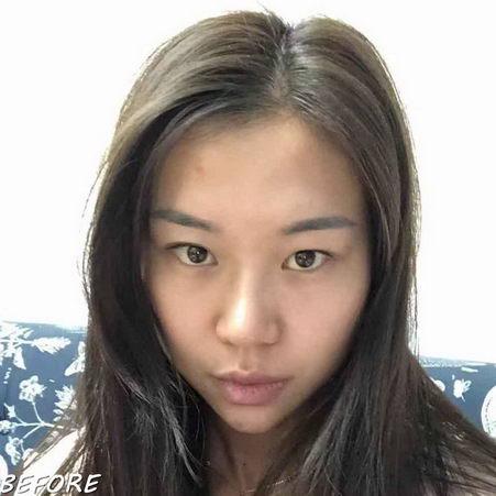深圳艺星整形医生常德成:双眼皮好看的诀窍原来在这!