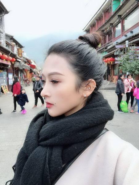 """深圳艺星整形医生朱辉:鼻假体有保质期?隆鼻10年就要""""返修""""一次?"""