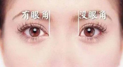 丰联丽格杨明强医生:做了双眼皮,眼睛就能变大?