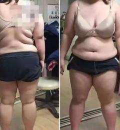 一次吸脂是否能让你从180斤瘦到90斤?贵美汇科普