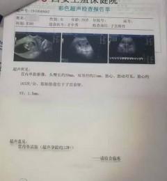 胚胎发育不良西安谁看的好?西安生殖保健院才中秀