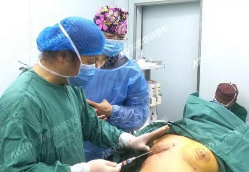 如何让缺失的乳房重新长大?武汉爱思特张敏院长迈阿密乳房再造,拯救缺失乳房