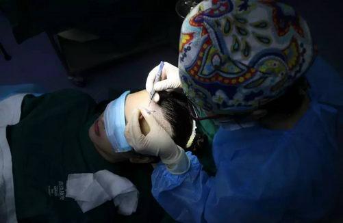 当红模特到青逸植发医院做发际线移植手术画面曝光