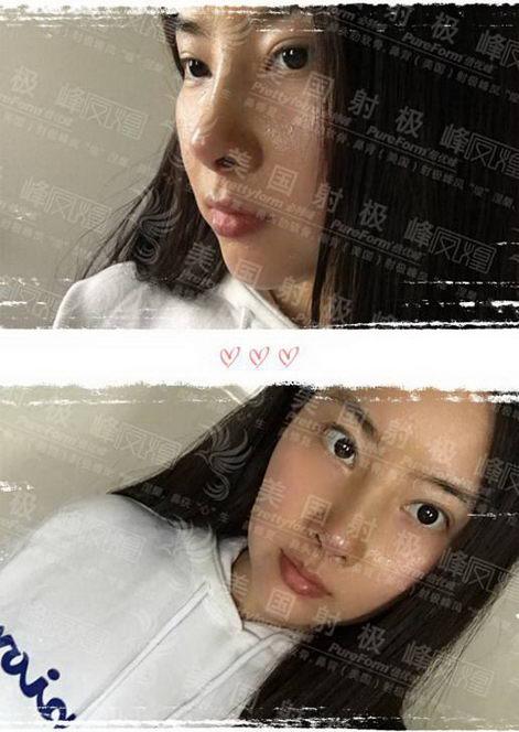 """上海美莱猪鼻女孩的华丽变身,""""鼻""""需""""整""""救使她秒变高级脸!"""
