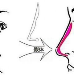 上海玫瑰整形医院隆鼻怎么样?赵延峰实现你到高挺鼻的蜕变