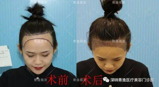 小姐姐在青逸植发医院做发际线种植,效果暴露