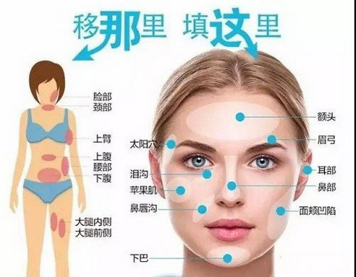 上海玫瑰整形医院自体脂肪填充效果怎么样?重塑饱满美丽形态