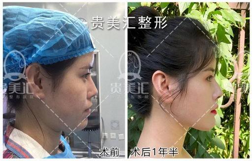 贵美汇日式面部提升术和超声刀的区别?