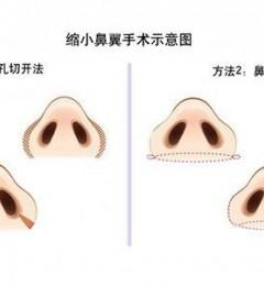 普罗普姿整形手术做的怎么样?缩鼻翼会不会留疤