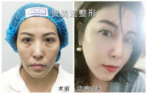 北京贵美汇靳玉彪医生吸脂效果好吗?