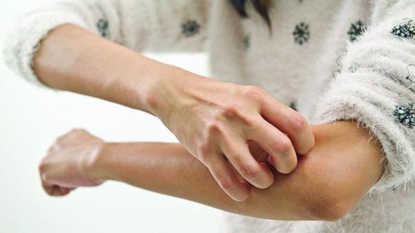 """皮肤""""痒""""了不能只靠抓 懂得养护更重要"""