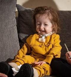 英国2岁女孩发生罕见基因突变长得像80岁老人