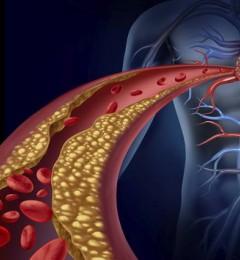 食物中的胆固醇会不会影响心血管健康