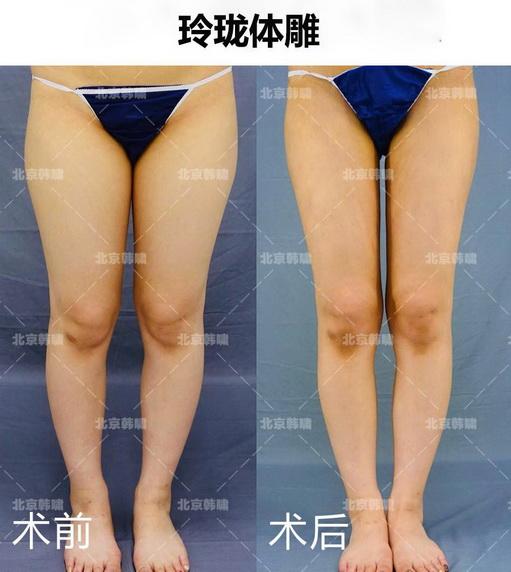 北京吸脂手术多少钱?吸脂手术需要去国外吗?