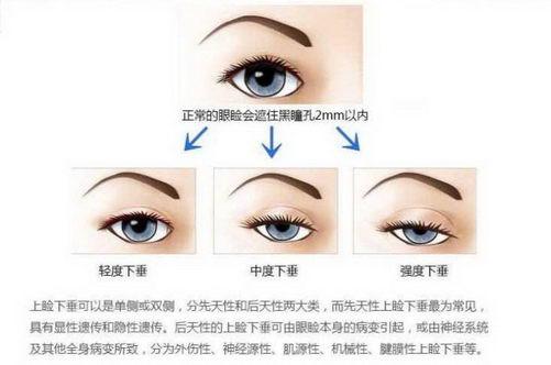 新疆整形医院刘丽娜:做双眼皮有几种方法