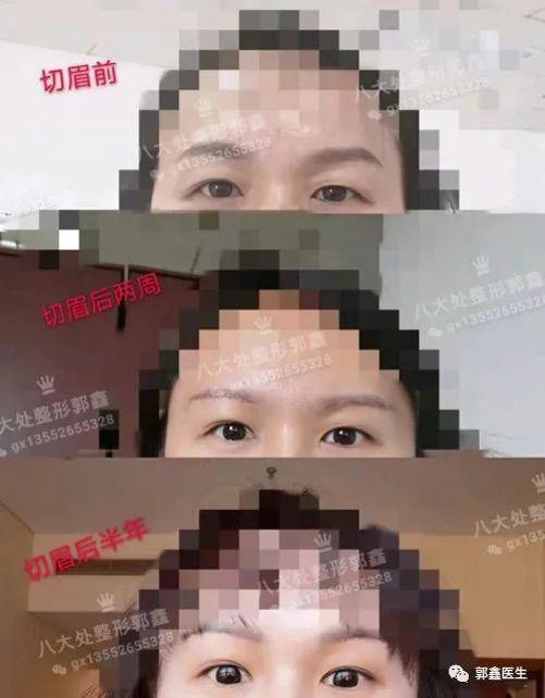 八大处整形郭鑫:切眉术后半年有什么变化