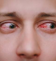 糖尿病对眼睛影响大,会引发许多眼科并发症