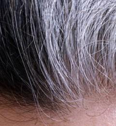 """研究发现压力伤害黑色素干细胞 可导致头发""""一夜间变白"""""""