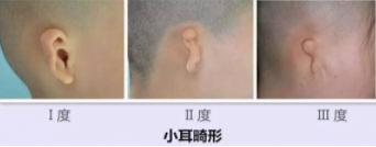 余文林:小耳畸形耳再造手术几岁做比较好?