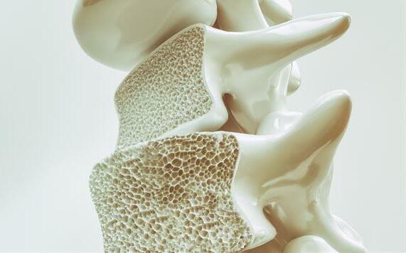 骨质疏松多发于女性 荷尔蒙分泌量在作怪