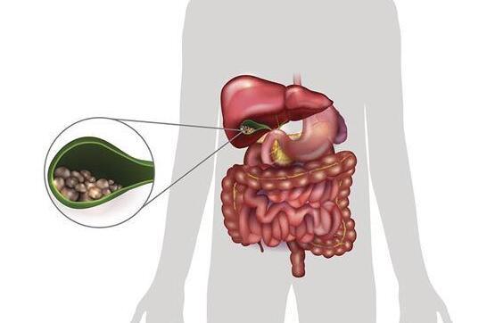 胆固醇太高易导致胆汁中浓度增加,形成胆结石