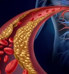春季气温骤降,血管内平滑肌收缩 好发心血管疾病