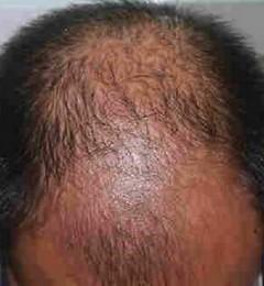 济南大麦植发 6级脱发患者移植4500单位毛囊的手术过程