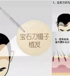 济南大麦微针植发 微针植发和镊子植发区别在哪