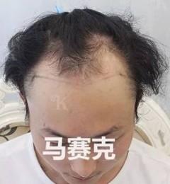 青岛大麦微针植发3002单位,改写脱发的命运