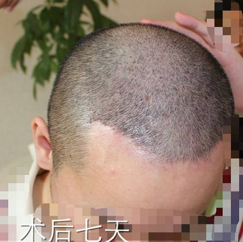 北京大麦植发技术靠谱吗?头发稀少不用怕,茂密重生有办法