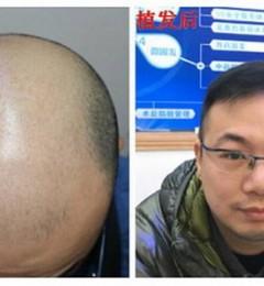 青岛大麦大面积植发,摆脱六级脱发的烦恼!