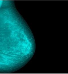 新技术下乳癌筛检 有望使女性摆脱X光辐射或挤压疼痛