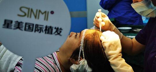 毛发移植中稀疏加密是用什么技术 微针植发-星美植发