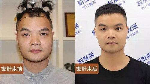 青岛大麦微针植发后,这还是当初那个小哥哥吗?