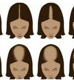 济南大麦加密植发后宽大的发缝不见了!年轻不止10岁!