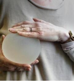 临床诊断出现了首例乳房植入物相关淋巴癌(BIA-ALCL)
