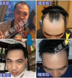 长沙大麦微针植发医院贵不贵,植发前与植发后真实对比!