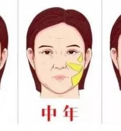 一招解决你的皱纹和皮肤松弛!天津美莱整形医院怎么样?