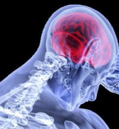 运动后头痛应先确认病因 半年内复发机会高