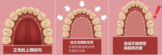 家长注意 研究发现用口呼吸的小朋友,明显牙齿较暴