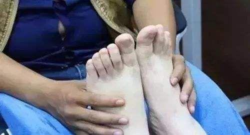 按摩脚心保健康 更有利于健康长寿