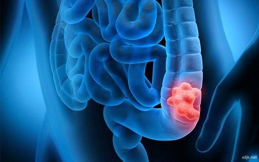 大肠癌发病年轻化 建议45岁应接受筛查
