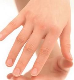 指甲上的线条需要担心吗?它可是人体的健康密码