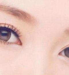 福州名韩整形徐丽丽:告诉你适合什么样的双眼皮?