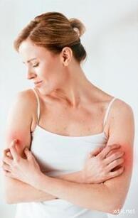 皮肤老是泛红、发痒、刺痛? 都是敏弱肌惹的祸!
